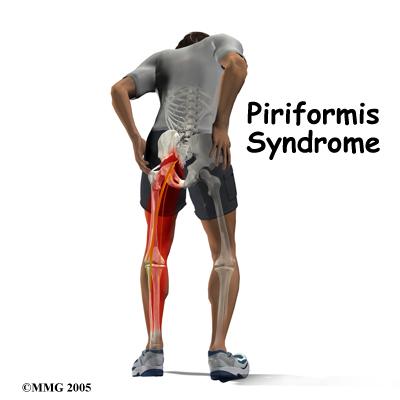 Tratamiento del Síndrome del Piramidal o Piriforme